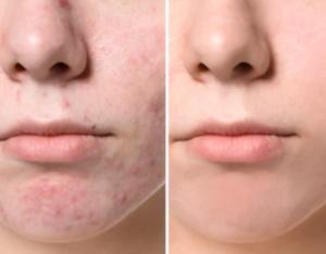 Behandling av acneärr - före och efter