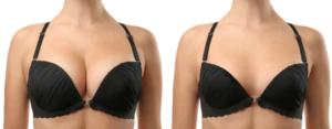 Bröstförstoring - Före och efter