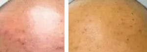 Fraxel laser - Före och efter
