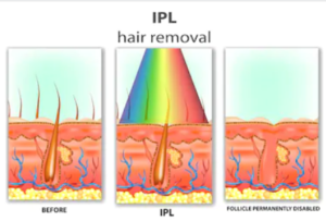 IPL står för intense pulsed light