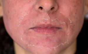 Hur ser huden ut efter kemisk peeling