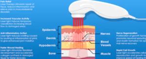 LED ljusterapi - vad händer i huden