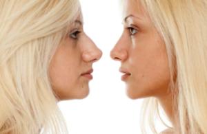 Näsoperation - före och efter