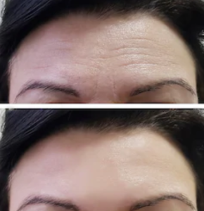 Botox - före och efter