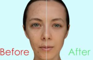 Före och efter kemisk peeling
