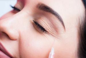 vad är botox?