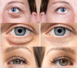 Ögonlocksplastik före och efter bilder