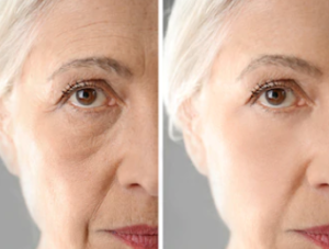 Resultat av ansiktslyft || se före och efter bilder