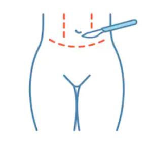 Bukplastik är en operation som utförs i syfte att avlägsna överflödig hud och fett kring midjan.