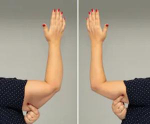 Boka en gratis videokonsultation inför din armplastik
