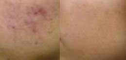 Hudslipning före och efter