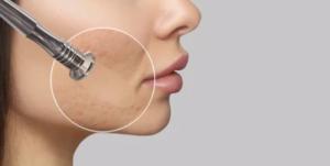 dermabrasion - hudslipning