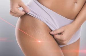 medicinsk laserbehandling på kliniker över hela Sverige